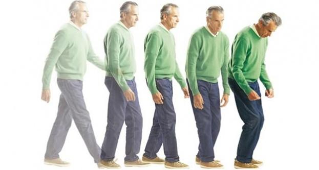 Parkinson'un temel nedeni dopamin eksikliği
