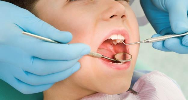 Çocuklukta kötü ağız bakımı , yetişkinlikte arteriyoskleroz aiskini arttırabilir