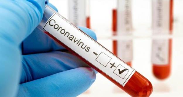 Koronavirüs nedeniyle bugün 97 kişi daha hayatını kaybetti