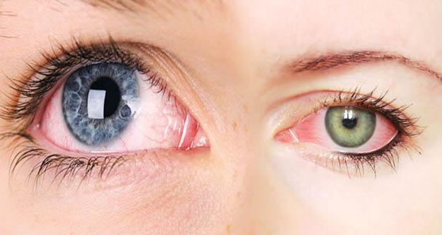 Soğuk havada göz kuruluğuna karşı 5 öneri